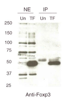 FOXP3 Antibody - Detection of immunoprecipitated FOXP3 from HA-tagged FOXP3 transfected Jurkat T antigen cells. Immunoprecipitated .  This image was taken for the unconjugated form of this product. Other forms have not been tested.