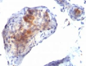 IHC testing of testicular carcinoma with FOXP3 antibody. This image was taken for the unmodified form of this product. Other forms have not been tested.
