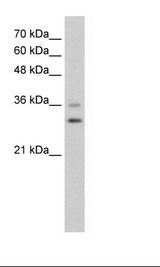 FOXQ1 Antibody - HepG2 Cell Lysate.  This image was taken for the unconjugated form of this product. Other forms have not been tested.