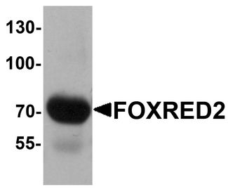 Western blot analysis of FOXRED2 in human lung tissue lysate with FOXRED2 antibody at 1 ug/ml.