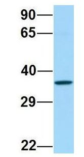 FP / PTGFR antibody Western Blot of 721_B lysate. Antibody Dilution: 1.0 ug/ml. PTGFR is supported by BioGPS gene expression data to be expressed in 721_B. Antibody dilution: 1 ug/ml.  This image was taken for the unconjugated form of this product. Other forms have not been tested.