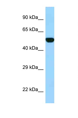 FPGS antibody Western blot of Fetal Heart lysate. Antibody concentration 1 ug/ml.  This image was taken for the unconjugated form of this product. Other forms have not been tested.