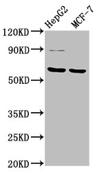 Western Blot Positive WB detected in: HepG2 whole cell lysate, MCF-7 whole cell lysate All Lanes: FPGS antibody at 3.2µg/ml Secondary Goat polyclonal to rabbit IgG at 1/50000 dilution Predicted band size: 65, 61, 60, 62 KDa Observed band size: 65 KDa