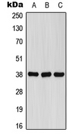 FPR1 / FPR Antibody - Western blot analysis of FPR1 expression in A549 (A); Raw264.7 (B); rat brain (C) whole cell lysates.