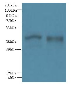 Western blot. All lanes: FPR1 antibody at 6 ug/ml. Lane 1: Colo320 whole cell lysate. Lane 2: HT29 whole cell lysate. Secondary Goat polyclonal to Rabbit IgG at 1:10000 dilution. Predicted band size: 38 kDa. Observed band size: 38 kDa.