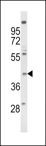 Western blot of FPRL2 Antibody in NCI-H460 cell line lysates (35 ug/lane). FPRL2 (arrow) was detected using the purified antibody.