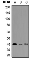 Western blot analysis of FPR3 expression in HEK293T (A); A549 (B); PC12 (C) whole cell lysates.