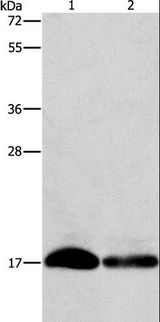 Fragilis / IFITM3 Antibody - Western blot analysis of HeLa and hepg2 cell, using IFITM3 Polyclonal Antibody at dilution of 1:500.