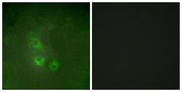 Immunofluorescence analysis of HUVEC cells, using FRK Antibody. The picture on the right is blocked with the synthesized peptide.