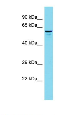 Western blot of 293T. FRMD1 antibody dilution 1.0 ug/ml.  This image was taken for the unconjugated form of this product. Other forms have not been tested.