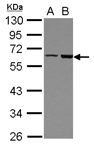 Sample (30 ug of whole cell lysate) A: HeLa B: HepG2 10% SDS PAGE FRMD8 antibody diluted at 1:500