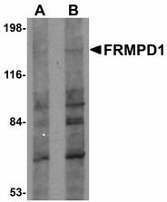 FRMPD1 Antibody - Western blot of FRMPD1 in K562 cell lysate with FRMPD1 antibody at (A) 1 and (B) 2 ug/ml. Below: Immunofluorescence of FRMPD1 in K562 cells with FRMPD1 antibody at 20 ug/ml.
