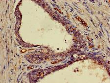 FRS2 Antibody - Immunohistochemistry of paraffin-embedded human prostate cancer using FRS2 Antibody at dilution of 1:100