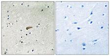 FRS2 Antibody - Immunohistochemistry analysis of paraffin-embedded human brain, using FRS2 (Phospho-Tyr436) Antibody. The picture on the right is blocked with the phospho peptide.