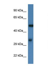 FSCN1 / Fascin antibody Western blot of Mouse Thymus lysate. Antibody concentration 1 ug/ml. This image was taken for the unconjugated form of this product. Other forms have not been tested.