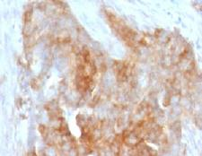 FSCN1 / Fascin Antibody - IHC testing of FFPE human ovarian carcinoma with Fascin antibody (clone FAN55-1).  This image was taken for the unmodified form of this product. Other forms have not been tested.