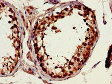 FSCN1 / Fascin Antibody - Immunohistochemistry image of paraffin-embedded human testis tissue at a dilution of 1:100