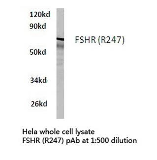 Western blot of FSHR (R247) pAb in extracts from HeLa cells.