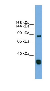 FSTL5 Antibody - FSTL5 antibody Western blot of Fetal Heart lysate. This image was taken for the unconjugated form of this product. Other forms have not been tested.