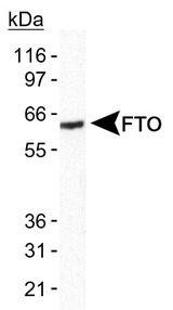 Detection of FTO in human brain lysate.  This image was taken for the unconjugated form of this product. Other forms have not been tested.
