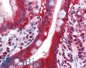 Anti-FTO antibody IHC of human small intestine. Immunohistochemistry of formalin-fixed, paraffin-embedded tissue after heat-induced antigen retrieval. Antibody LS-B5891 concentration 5 ug/ml.  This image was taken for the unconjugated form of this product. Other forms have not been tested.