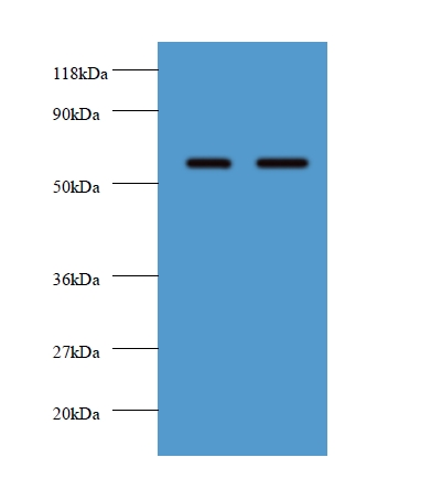 Western blot of Plasma alpha-L-fucosidase antibody at 2 ug/ml. Lane 1: EC109 whole cell lysate. Lane 2: 293T whole cell lysate. Secondary: Goat polyclonal to rabbit IgG at 1:10000 dilution. Predicted band size: 51 kDa. Observed band size: 51 kDa.  This image was taken for the unconjugated form of this product. Other forms have not been tested.