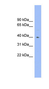 FUT1 antibody LS-C116259 Western blot of Fetal Heart lysate.  This image was taken for the unconjugated form of this product. Other forms have not been tested.
