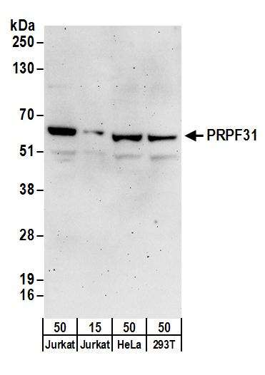 Detection of human PRPF31 by western blot. Samples: Whole cell lysate from Jurkat (15 and 50 µg), HeLa (50µg), and HEK293T (50µg) cells. Antibodies: Affinity purified rabbit anti-PRPF31 antibody used for WB at 0.1 µg/ml. Detection: Chemiluminescence with an exposure time of 3 minutes.
