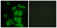 Immunofluorescence analysis of A549 cells, using FXR2 Antibody. The picture on the right is blocked with the synthesized peptide.