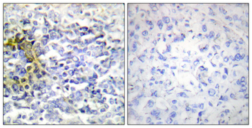 Immunohistochemistry analysis of paraffin-embedded human lung carcinoma tissue, using FXR2 Antibody. The picture on the right is blocked with the synthesized peptide.