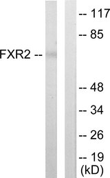Western blot analysis of lysates from COLO205 cells, using FXR2 Antibody. The lane on the right is blocked with the synthesized peptide.