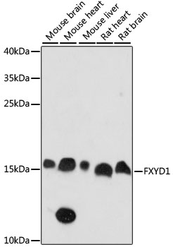 FXYD1 / Phospholemman Antibody - Western blot analysis of extracts of various cell lines, using FXYD1 antibody at 1:1000 dilution. The secondary antibody used was an HRP Goat Anti-Rabbit IgG (H+L) at 1:10000 dilution. Lysates were loaded 25ug per lane and 3% nonfat dry milk in TBST was used for blocking. An ECL Kit was used for detection and the exposure time was 90s.