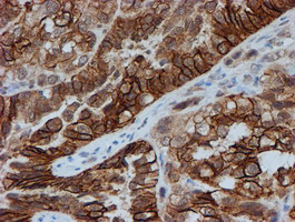 IHC of paraffin-embedded Adenocarcinoma of Human ovary tissue using anti-FXYD3 mouse monoclonal antibody. (Heat-induced epitope retrieval by 10mM citric buffer, pH6.0, 100C for 10min).