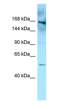 FYCO1 antibody Western Blot of MDA-MB-435S.  This image was taken for the unconjugated form of this product. Other forms have not been tested.