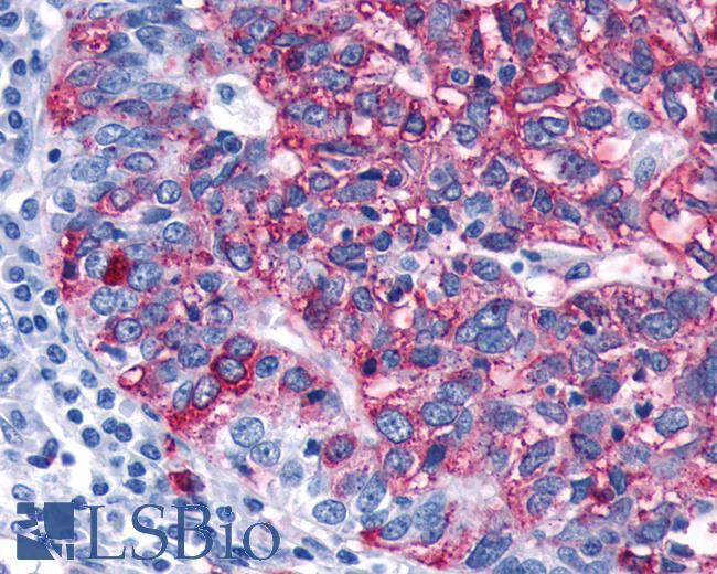 Anti-FZD3 / Frizzled 3 antibody IHC of human Ovary, Carcinoma. Immunohistochemistry of formalin-fixed, paraffin-embedded tissue after heat-induced antigen retrieval.