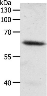 FZD4 / Frizzled 4 Antibody - Western blot analysis of Mouse heart tissue, using FZD4 Polyclonal Antibody at dilution of 1:200.