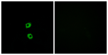 Immunofluorescence analysis of MCF7 cells, using FZD7 Antibody. The picture on the right is blocked with the synthesized peptide.