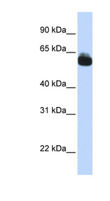 FZD9 / Frizzled 9 antibody Western blot of Fetal Brain lysate. This image was taken for the unconjugated form of this product. Other forms have not been tested.