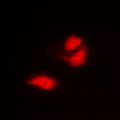 Immunofluorescent analysis of G3BP1 staining in A549 cells. Formalin-fixed cells were permeabilized with 0.1% Triton X-100 in TBS for 5-10 minutes and blocked with 3% BSA-PBS for 30 minutes at room temperature. Cells were probed with the primary antibody in 3% BSA-PBS and incubated overnight at 4 C in a humidified chamber. Cells were washed with PBST and incubated with a DyLight 594-conjugated secondary antibody (red) in PBS at room temperature in the dark. DAPI was used to stain the cell nuclei (blue).