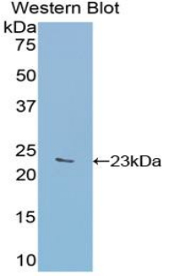 Western blot of recombinant GAA.  This image was taken for the unconjugated form of this product. Other forms have not been tested.