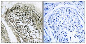 IHC of paraffin-embedded human esophagus, using GAB4 Antibody. The picture on the right is treated with the synthesized peptide.