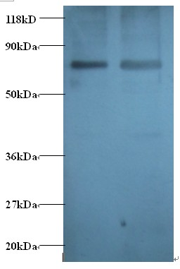 Western blot of Casein kinase II subunit beta antibody at 2 ug/ml. Lane 1: EC109 whole cell lysate. Lane 2: 293T whole cell lysate. Secondary: Goat polyclonal to Rabbit IgG at 1:15000 dilution. Predicted band size: 13 kDa. Observed band size: 80 kDa.  This image was taken for the unconjugated form of this product. Other forms have not been tested.