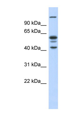 GABPB2 antibody Anti-GA binding protein beta chain (GABPB2) Western blot of Fetal Muscle lysate.  This image was taken for the unconjugated form of this product. Other forms have not been tested.