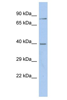 GABRA2 antibody Western Blot of OVCAR-3. Antibody dilution: 1 ug/ml.  This image was taken for the unconjugated form of this product. Other forms have not been tested.