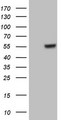 HEK293T cells were transfected with the pCMV6-ENTRY control (Left lane) or pCMV6-ENTRY GABRA5 (Right lane) cDNA for 48 hrs and lysed. Equivalent amounts of cell lysates (5 ug per lane) were separated by SDS-PAGE and immunoblotted with anti-GABRA5.