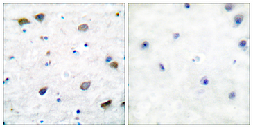 Immunohistochemistry analysis of paraffin-embedded human brain tissue, using GABA-RB Antibody. The picture on the right is blocked with the synthesized peptide.