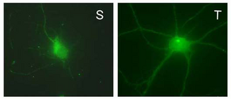 Rat hippocampal neuron surface (S) and total (T) protein immunofluorescent staining.