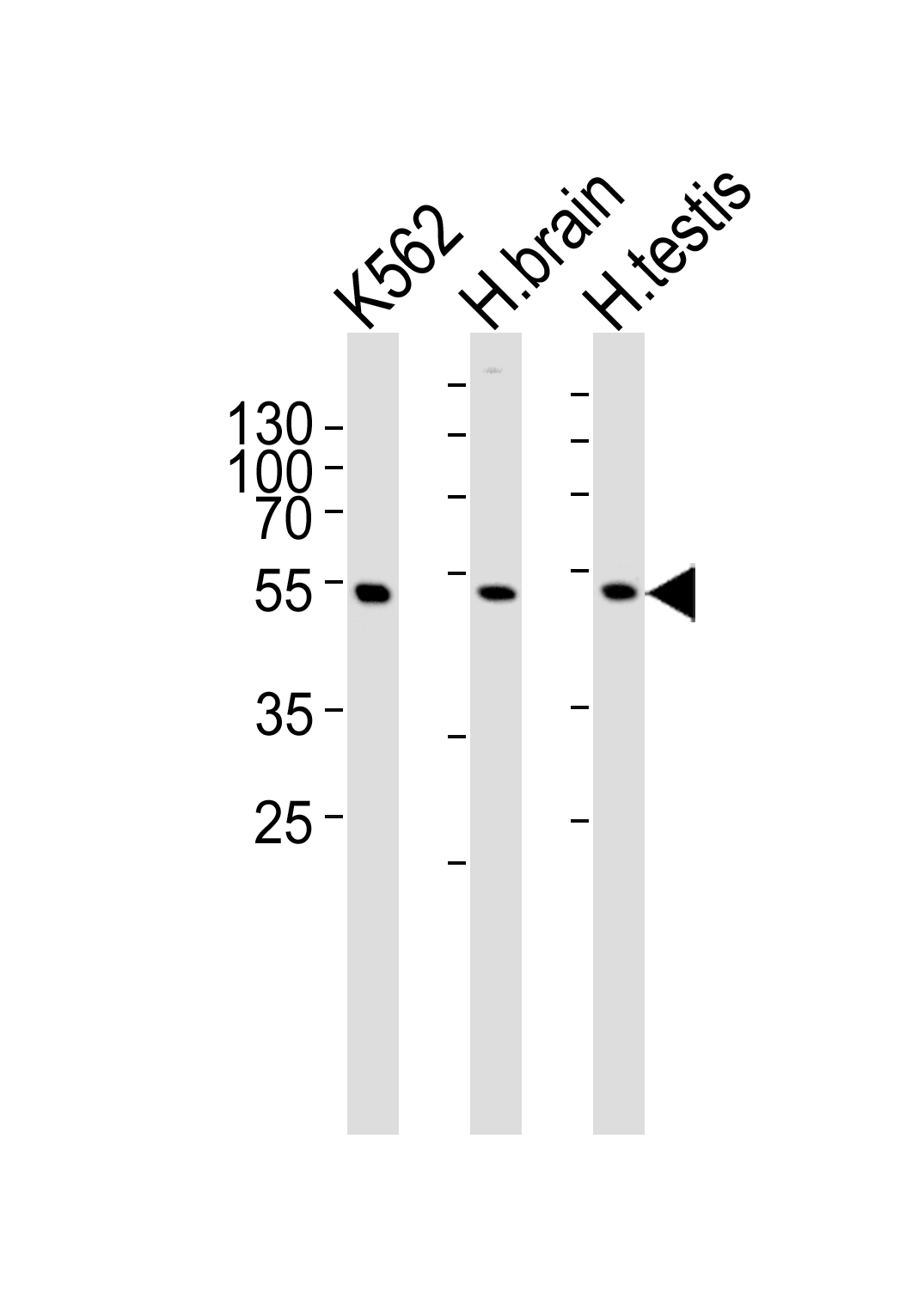 Western blot of lysates from K562 cell line and human brain, testis tissue lysate(from left to right), using GABRG3 Antibody. Antibody was diluted at 1:1000 at each lane. A goat anti-rabbit IgG H&L (HRP) at 1:5000 dilution was used as the secondary antibody. Lysates at 35ug per lane.