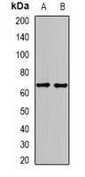 Western blot analysis of GAD2 expression in mouse heart (A); mouse brain (B) whole cell lysates.