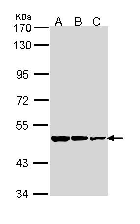 Sample (30 ug of whole cell lysate). A: A431. B: H1299. C: Hela. 7.5% SDS PAGE. GAD2 antibody diluted at 1:1000.